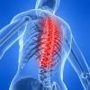 Біль у спині вище попереку - перші ознаки захворювання опорно-рухового апарату