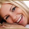 Красива посмішка - на шляху до досконалості