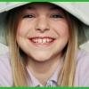 Лікування дитячого карієсу