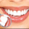 Вініри на зуби - легкий шлях до вашої ідеальної посмішці